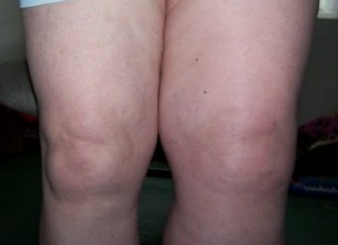 picture of leg swollen from blood clot: DVT survivor Jackie Davis